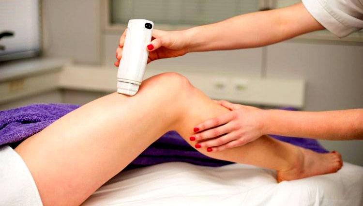 Лазерна епилация на крака